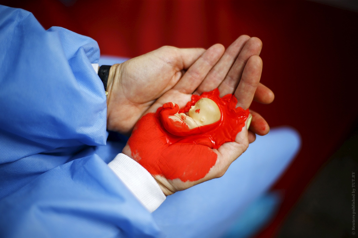 abortion essaywk1 final2815 Abortion is the ending of pregnancy due to removing an embryo or fetus before it can survive outside the uterus an abortion that occurs spontaneously is also.
